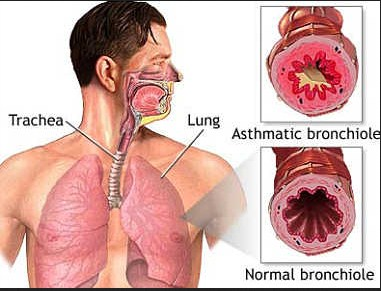 explanation of asthma